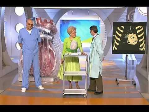 видео: Сердечные оковы. Как лечить перикардит