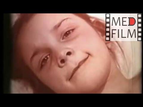СКАРЛАТИНА У ДЕТЕЙ, симптомы, лечение. Академик Нисевич Н.И. © Scarlet fever