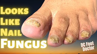 Looks Like Nail Fungus: Treating and Trimming Fungal Nails