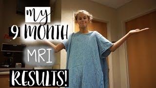 Baixar MY 9 MONTH MRI RESULTS!