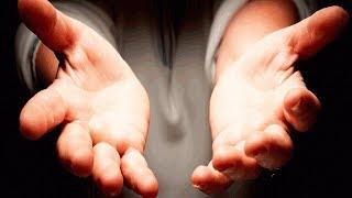 ЭТО ЛАДОНИ 33-ЛЕТНЕГО МУЖЧИНЫ! КАК ОН ДОВЕЛ СВОИ РУКИ ДО ТАКОГО СОСТОЯНИЯ? В ЭТО СЛОЖНО ПОВЕРИТЬ!