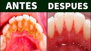 remedios caseros para sacar el sarro de los dientes