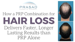 How a PRP Combination for Hair Loss Delivers Faster, Longer Lasting Results than PRP Alone   Amiya Prasad, M.D.