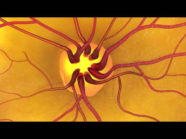 Animation: Dilated Eye Exam