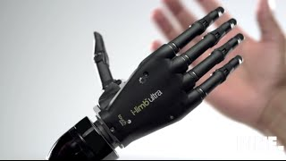 Top 5 bionic arm