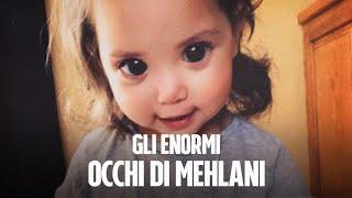 I grandi occhi di Mehlani, la bambina che combatte una rara malattia genetica