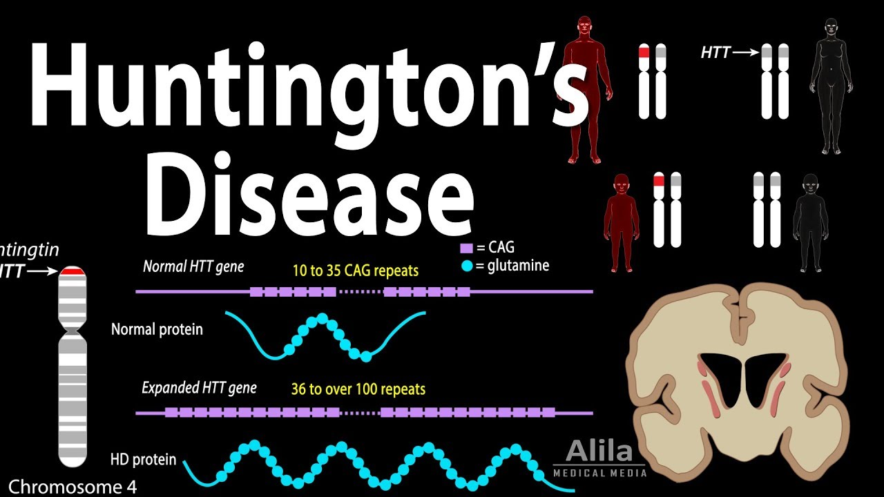 an overview of huntingtons disease causes symptoms diagnosis and treatment Huntington disease causes huntington disease is a genetic condition in which the main causes, symptoms, diagnosis and treatment friedreich ataxia friedreich.