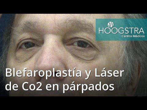 Blefaroplastía y Láser de Co2 en párpados (16140)