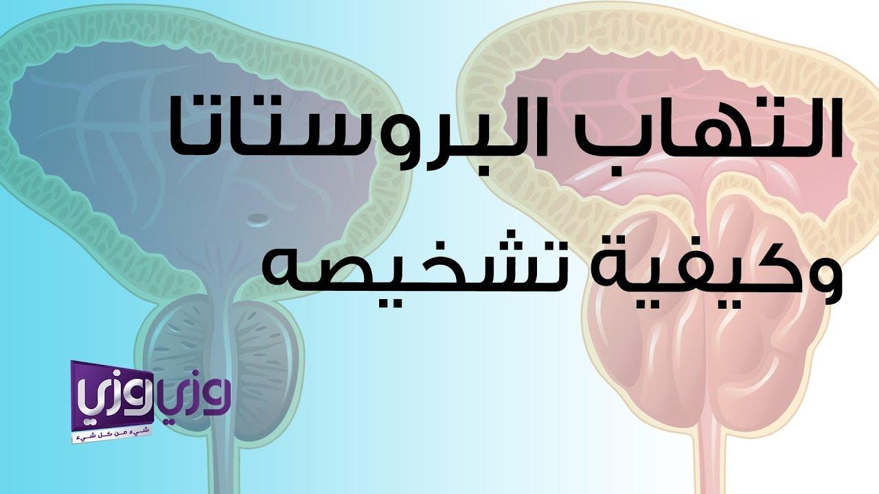 التهاب البروستاتا وكيفية تشخيصه وطريقة علاجه