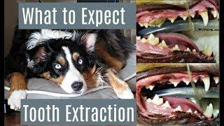Categorias De Videos Tooth Extraction Aftercare