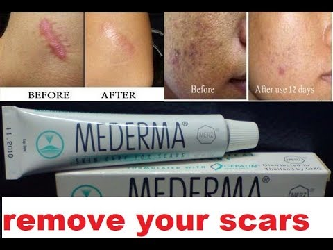 Erase All Kinds Of Scars With Mederma 100 Guaranteed And