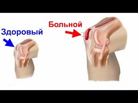 Бурсит лечение в домашних условиях. Воспаление суставов. Эффективное лечение бурсита