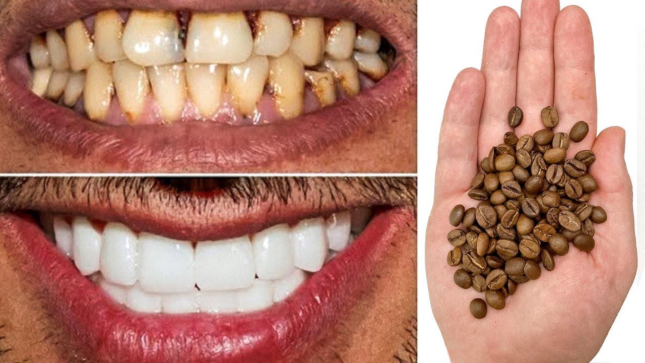 Отбеливание ЗУБОВ за 2 минуты в Домашних условиях! Как отбелить желтые зубы