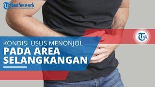 Hernia Inguinal : Hernia Direct (Medial) dan Hernia  Indirect (Lateral).