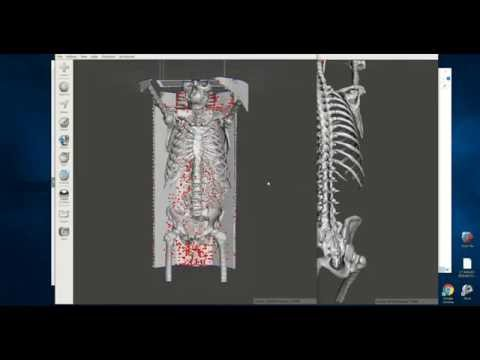 A ridiculously easy and free way to make 3D printable bones from CT scans