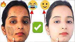 hqdefault - Pimples Solutions In Hindi