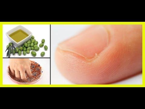 menu para combatir la gota acido urico 6.4 mg dl como se manifiesta el acido urico elevado