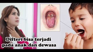 Download Video Berita Hot...!!! Penyakit Difteri yang Menjadi Ancaman Untuk Anak_anak MP3 3GP MP4