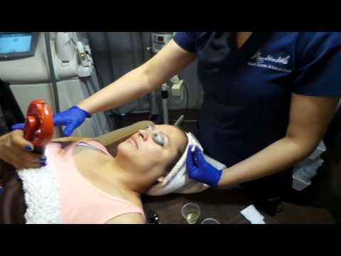 SkinMedica Vitalize Chemical Peel