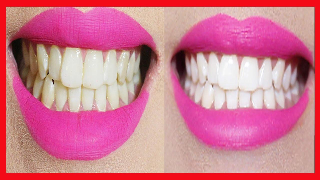 Dentes Amarelos Aprenda Como Clarear Os Dentes Em 2 Minutos