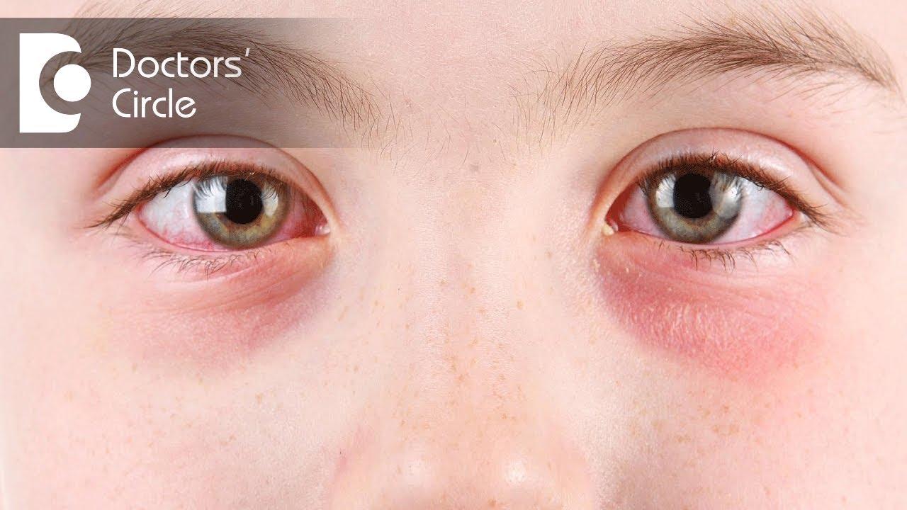 allergi mandel symptom