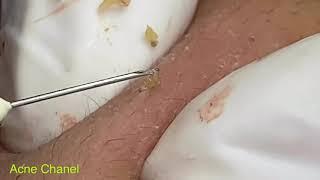 Acne Treatment- super big blackheads - mun dau den - jerawat #10