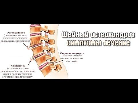 Головокружение при шейном остеохондрозе: в чем причины и