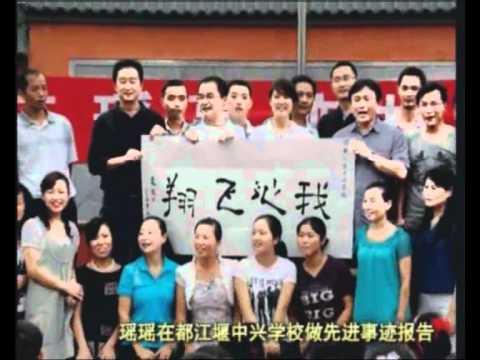 Amputee Woman DAE Lei Qingyao[ - chengdu