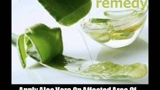 10 Home Remedies For Skin Fungus