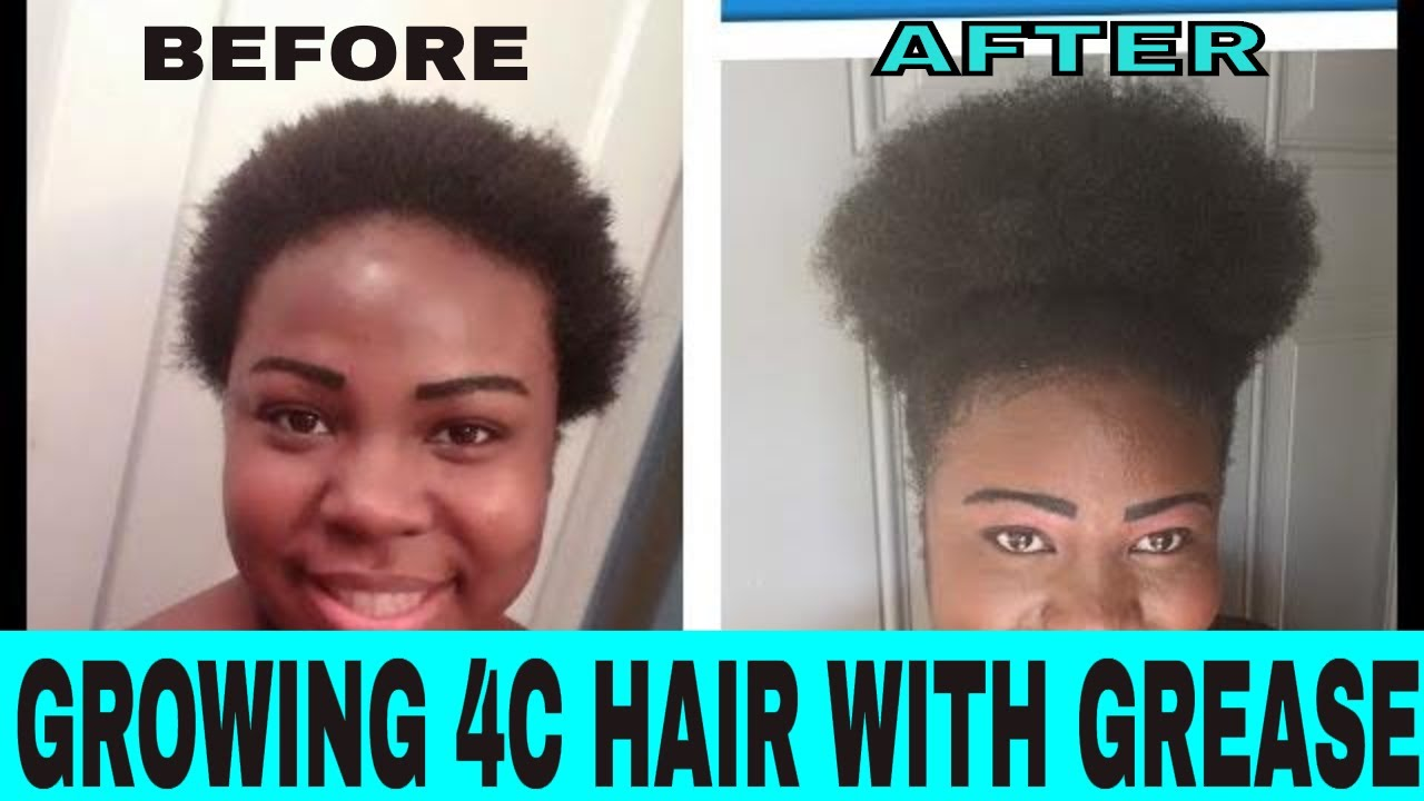 How To Grow 4c Hair Fast With Sulfur 8 And Blue Magic