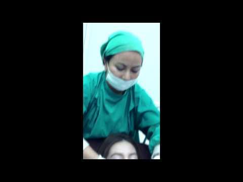 นวดปาก หลังทำผ่าตัดปากกระจับ ปากบาง