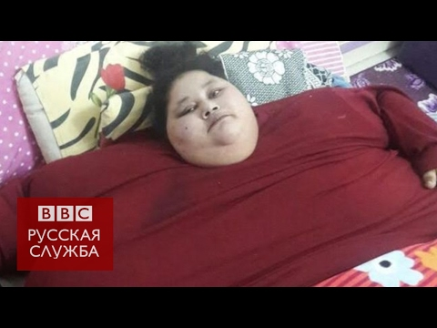 500-килограммовую египтянку привезли худеть в Индию
