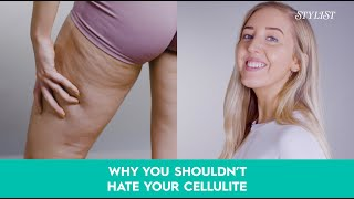 Lucy Mountain: Why you shouldn't hate your cellulite