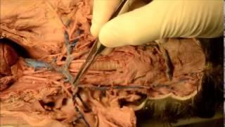 PBS College Anatomy 2 Lab Upper  Cat Veins