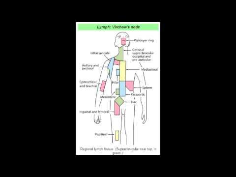 Virchow's Node (Abdominal Metastasis)