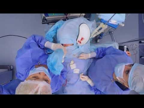 Как проводится операция септопластика при искривленной перегородке?