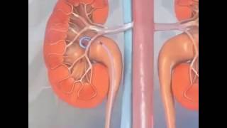 Ureteral Stent Treatment : 3D animation