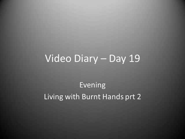 Day 19 Evening : Living with Burnt Hands