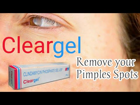 Clear Gel For Acne Treatment