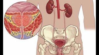 видео Эффективное лечение аденомы простаты народными средствами