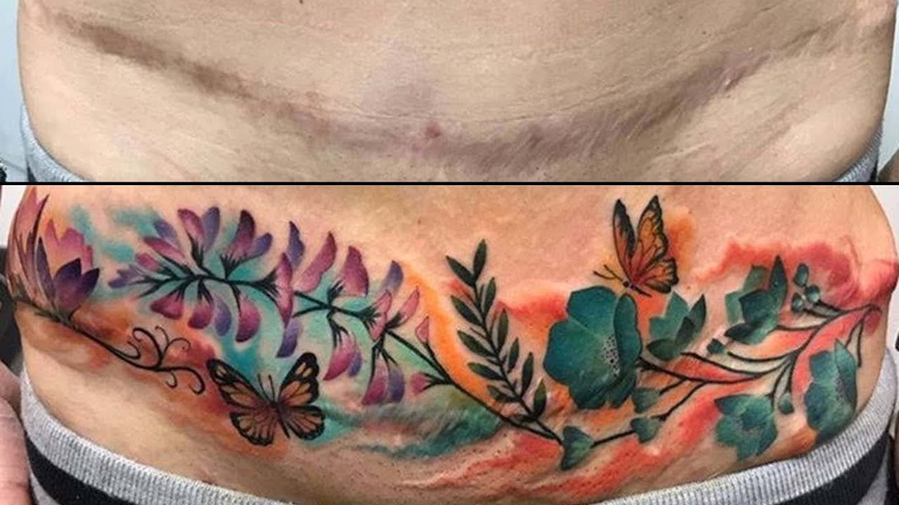 Tatuajes Para Cubrir Cicatrices Ideas Y Consejos Youtube