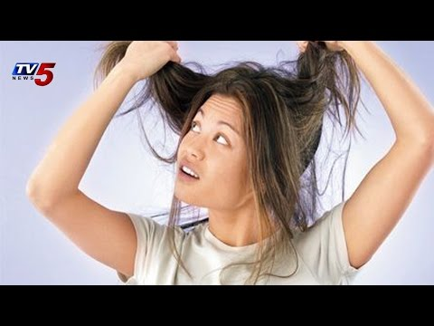 Vibes   Hair fall and Dandruff Solutions 22.10.2014 : TV5 News
