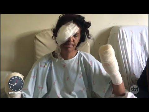 Mulher tem as mãos decepadas e o olho perfurado pelo próprio marido | Primeiro Impacto (27/06/18)