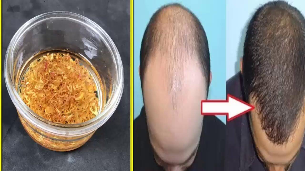 Cách trị rụng tóc, kích thích mọc tóc nhanh, dày và chắc khỏe chỉ với vài cây sả [cách làm đẹp]