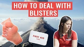 Should You Pop A Blister? | HOW TO Deal With Blisters