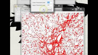 Quantifying Stained Liver Tissue Area Using ImageJ