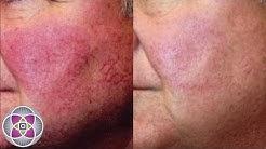 hqdefault - Acne Rosacea Solution Treatment