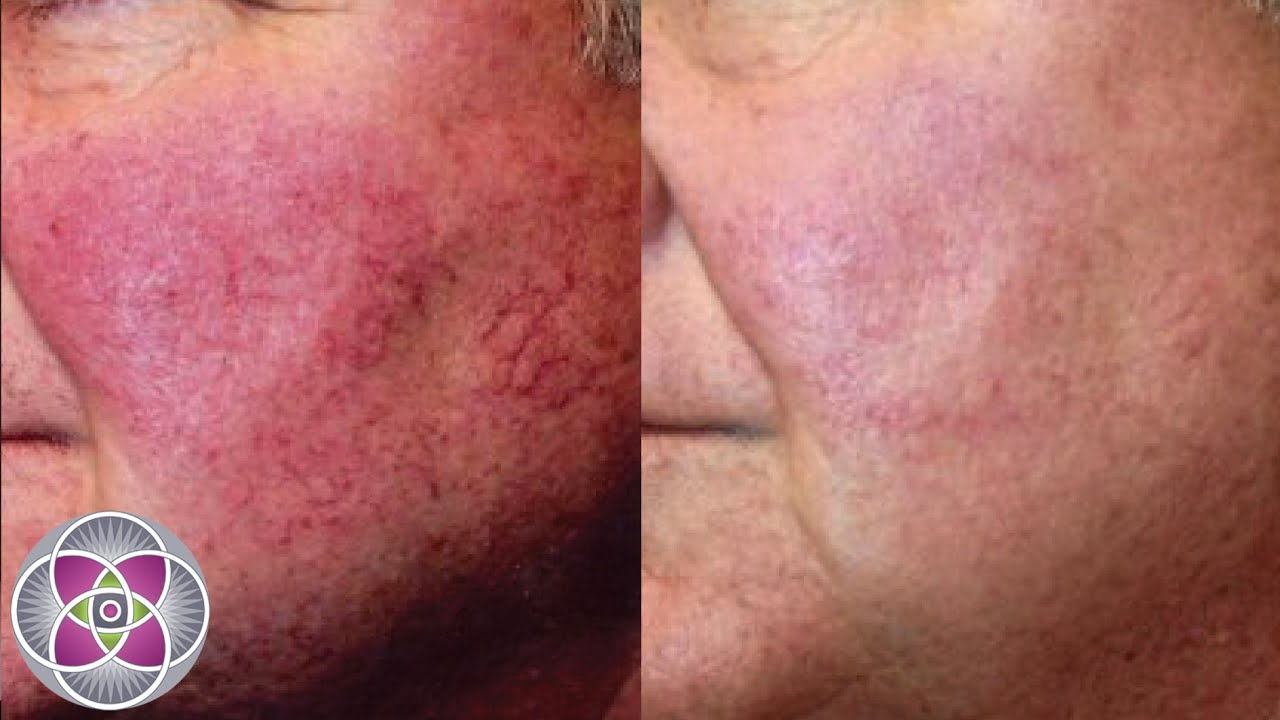 What Is Rosacea Laser Treatment Youtube