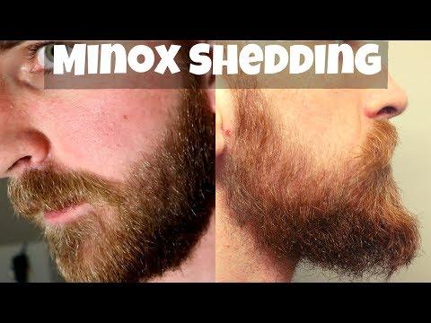 BRUTAL Minoxidil Shedding Phases, IRL Beard Transformation Reactions | Q&A #1