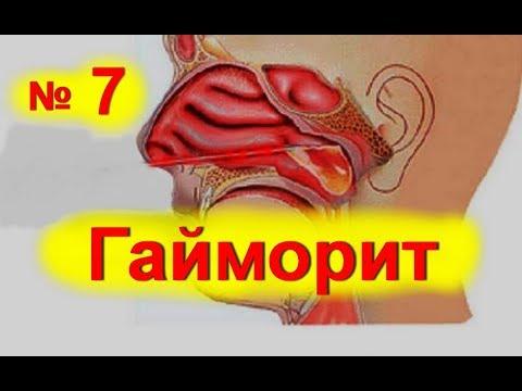 Гайморит у взрослых - признаки, профилактика, лечение